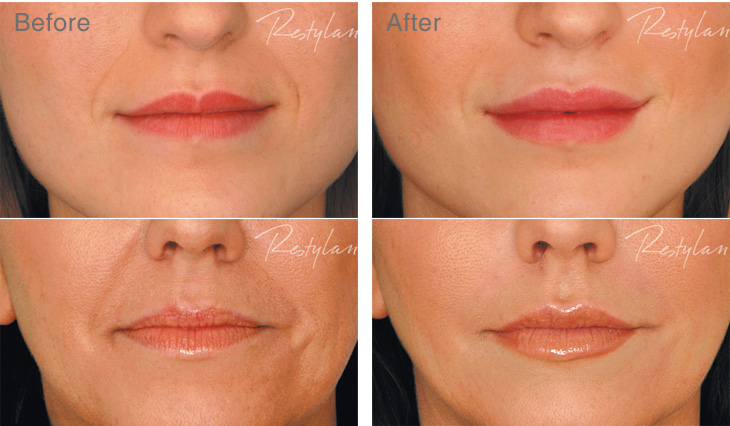 Lip Fillers Augmentation Treatment Enhancement